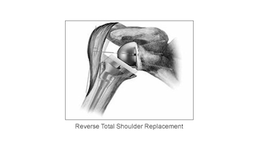 Photo of Opioid use does not impair reverse shoulder arthroplasty success
