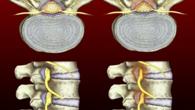 Photo of Surgical and nonsurgical spinal stenosis treatment outcomes similar after eight years