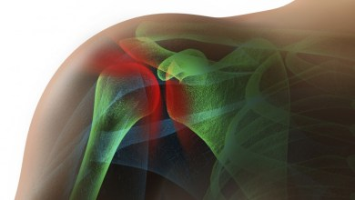 Photo of Low retear rate found with absorbable biologic scaffold-reinforced rotator cuff repair