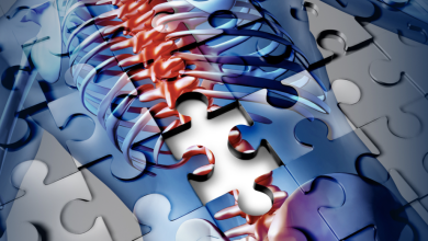 Photo of 5 things to know on disc degeneration after scoliosis spinal fusion
