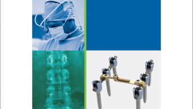 Photo of RTI Surgical® Announces Launch of Streamline® TL Spinal Fixation System – Deformity Instrumentation