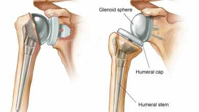 Photo of Global Reverse Shoulder Arthroplasty Market to Grow at a CAGR of 12.14% to 2020