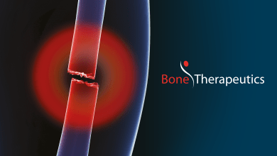 Photo of Bone Therapeutics announces further positive efficacy in ALLOB® Phase I/IIA delayed-union fracture trial