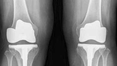 Photo of Silicon implant 'helps worn knees to regrow' – and could spare thousands of patients from surgery