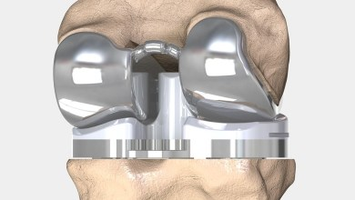 Photo of 3D Printed Knee Replacements Could Offer Decades Of Pain Free Mobility