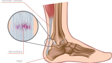 Photo of PONTiS Orthopaedics Launches Foot & Ankle Surgery Products