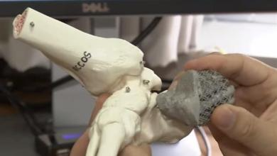 Photo of South Korean man successfully implanted with the country's first 3D printed heel bone