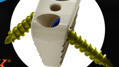 Photo of Centric Medical™ Announces FDA Clearance of TARSA-LINK™ Bunion System