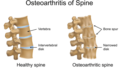 Photo of Researchers discover two biomarkers that contribute to spinal osteoarthritis