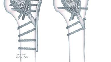 Photo of Conventus Orthopaedics announces milestone of 700+ Cage implantations