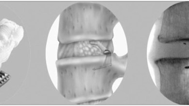 Photo of Intrinsic Therapeutics announces the Filing of PMA Application for its Barricaid® Anular Closure Device for Lumbar Discectomy Patients.