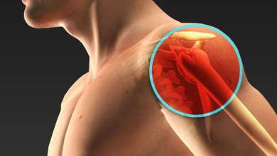 Photo of Extremity Reconstruction Market Segment Analysis and Forecasts Report