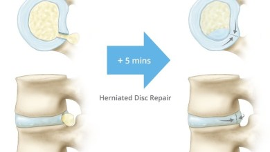 Photo of Texas Back Institute first in the US to provide herniated disc repair using Anchor Orthopedics' Technology