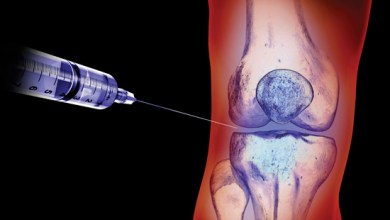 Photo of Knee osteoarthritis: Steroid injections offer no benefit, study suggests