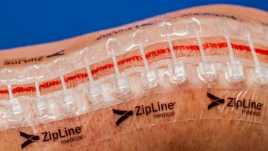 Photo of Zip Surgical Skin Closure Reduces Post-Discharge Costs, Clinic Calls and Antibiotics in First Economic Study of Device