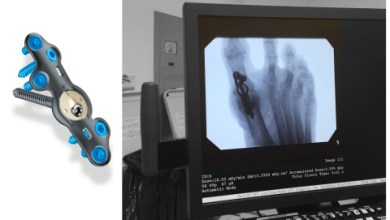 "Photo of In2Bones Announces FDA Clearance of the CoLink® View ""See-Through"" Plating System"