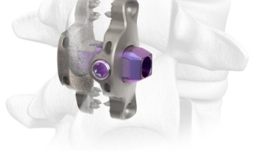 Photo of Spinal Elements® Announces Expanded Commercial Release of its Clutch® Interspinous Process Device