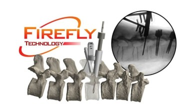 Photo of OrthoPediatrics Announces Expanded Indication for FIREFLY® Pedicle Screw Navigation Guides