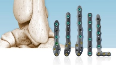 Photo of In2Bones Announces the Commercial Market Release of the CoLink® Afx Ankle Fracture Repair System