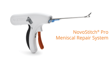 Photo of Smith & Nephew expands opportunity in meniscal repair through acquisition of unique and highly complementary technology