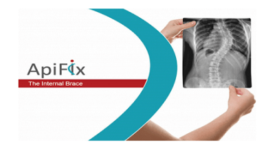 Photo of ApiFix Receives FDA Approval to Commercialize MID-C System for Motion-Preserving Deformity Treatment of Progressive Idiopathic Scoliosis in Adolescents