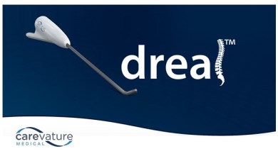 Photo of Carevature's Cutting-Edge Dreal® Technology Now Available to Spine Surgeons at Scripps Health