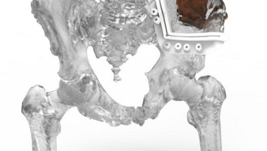 Photo of 3D Systems' VSP Orthopaedics Receives FDA 510(k) Clearance — Opening the Door to Personalized Treatment of Complex Musculoskeletal Disease