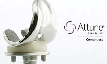 Photo of DePuy Synthes Expands ATTUNE Knee Platform with Cementless Option