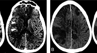 Photo of Case Study Documents Link between Acute Ischemic Strokes and COVID-19