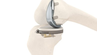 Photo of Engage Surgical Announces FDA 510(k) Clearance And Limited Market Release Of The Cementless Engage™ Partial Knee System