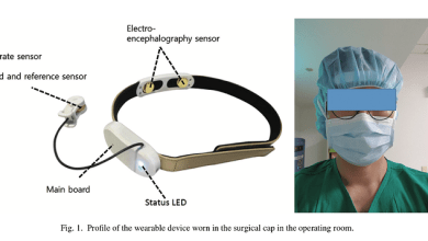 Photo of When Surgeons Wear Stress Monitors During Procedures…