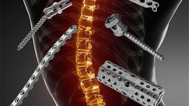 Photo of Spine Implants Global Market Report 2020-30: Covid 19 Growth and Change
