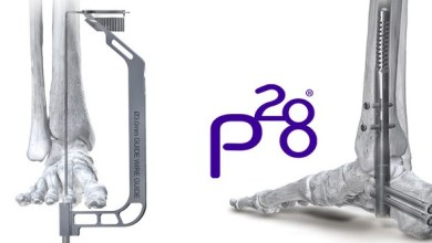 Photo of Paragon® 28 Launches Phantom® ActivCore Hindfoot Nail System which Provides Constant Active Compression Across the Ankle and Subtalar Joints