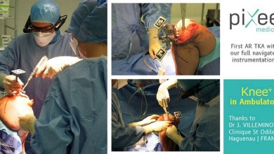 Photo of Pixee Medical Completes its First Total Knee Replacement Surgery Guided Solely by the Vuzix M400 Smart Glasses