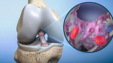 Photo of Biorez Raises $3.5 Million to Advance Tendon and Ligament Repair