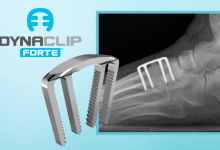 Photo of MedShape Announces Commercial Launch of the DynaClip Forte® NiTiNOL Bone Fixation System