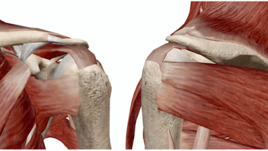 """Photo of HSS Study: Delay in Rotator Cuff Repair Associated with """"Significant"""" Increase Revision Surgery"""
