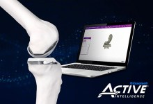 Photo of Exactech and Bodycad Sign Exclusive Distribution Agreement to Offer Personalized Unicompartmental Knee Replacement