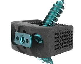 Photo of Nexxt Spine Announces First Case with Newly Launched Nexxt Matrixx® SA Cervical Turn-Lock System