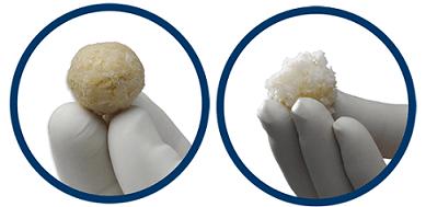 Photo of ViviGen® Cellular Bone Matrix outperforms MSC-based allografts and is equivalent to gold standard autograft