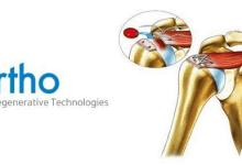 Photo of Ortho Regenerative Technologies Enters Into Global License With Hanuman Pelican, Inc.