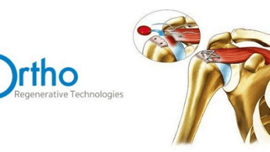 Photo of Ortho Regenerative Technologies Enters Into Global License With Hanuman Pelican, Inc.
