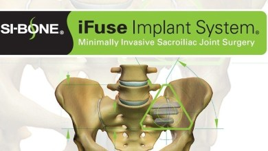 Photo of SI-BONE, Inc. Announces that Updated ISASS Policy and Guidelines on MIS SI Joint Fusion Support Only Lateral Transiliac MIS Procedures