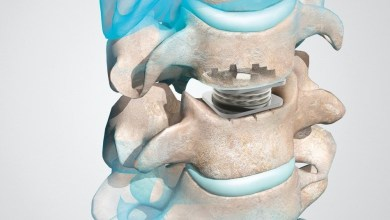 Photo of Orthofix M6-C Artificial Cervical Disc IDE Study Three- and Four-Year Data to be Presented at ISASS