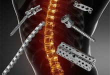 Photo of Spinal Surgery Devices And Equipment Global Market Report 2021: COVID 19 Impact and Recovery to 2030