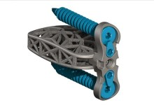 Photo of 4WEB Medical Announces Commercial Launch of its Lumbar Spine Plating Solution