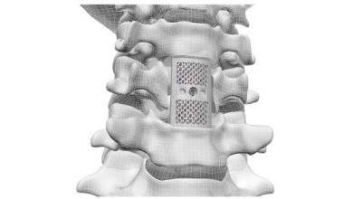 Photo of CoreLink Announces FDA Clearance of F3D Corpectomy System