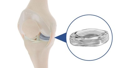 Photo of Active Implants' NUsurface® Meniscus Implant Provides Statistically Superior Pain Relief