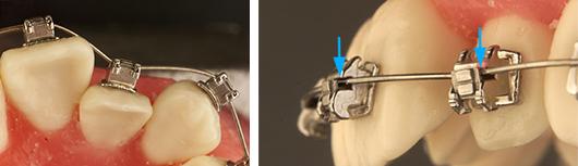 bracket-ortodoncia-postgrado