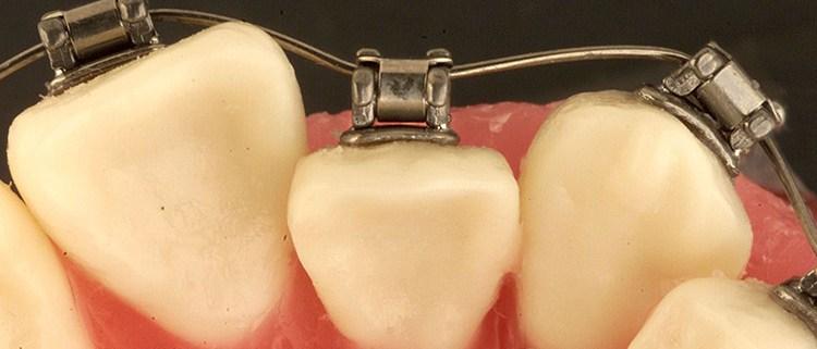 brackets-postgrado-ortodoncia